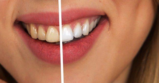 Tandläkare i Järfälla med specialistkunskap inom estetisk tandvård